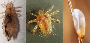Cómo se ven los piojos: familiarizados con las características de la apariencia y la biología de los parásitos