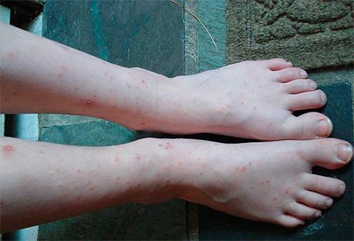 Numerosas picaduras de pulgas en las piernas.