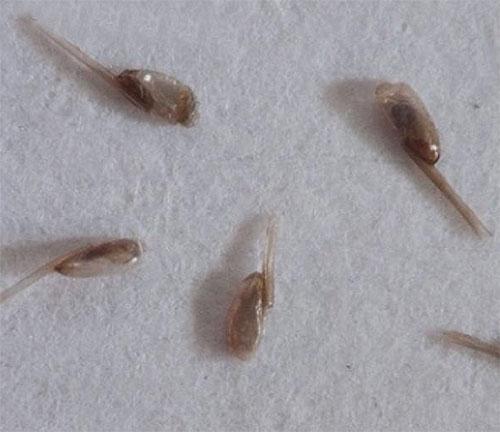 Prácticamente cualquier remedio para piojos y liendres debe combinarse con peinar parásitos usando un peine.