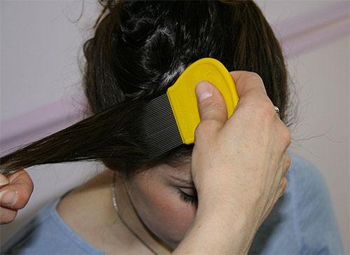 Si elige un método mecánico para eliminar las liendres, debe peinarse el cabello con cuidado, hebra por hebra