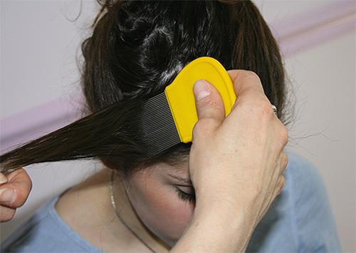 Después del tratamiento de la cabeza con un spray o champú, debe peinar los piojos con un peine especial, hebra por hebra.