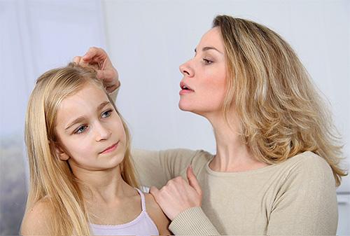 La remoción de piojos en el hogar es una buena opción para quienes temen lesionar la psique del niño contactando a los centros de detención.