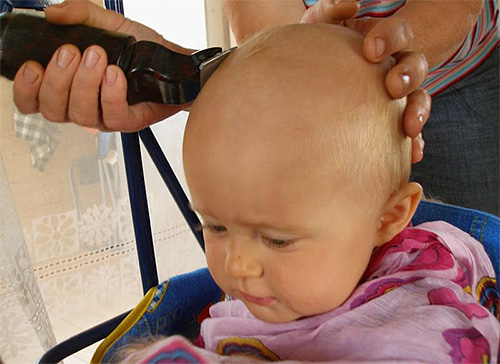 Afeitarse las áreas del cuerpo infectadas con piojos es la mejor manera de deshacerse de los piojos.