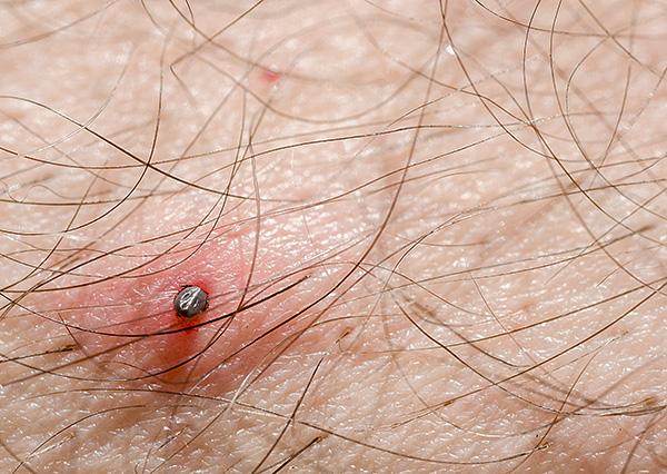 Cuanto más tiempo el parásito continúa chupando sangre, más infectado entra en la herida.