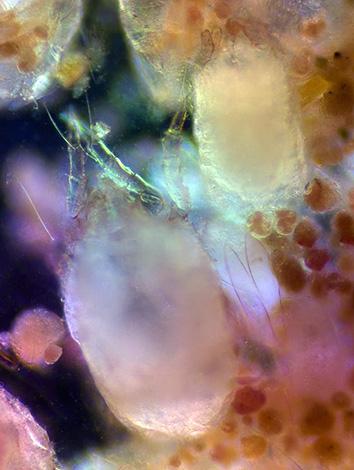Las heces de estos artrópodos son capaces de causar reacciones alérgicas graves en los seres humanos.