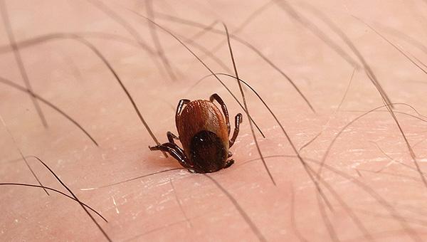 La infección puede ocurrir incluso si la garrapata se acaba de atascar, después de lo cual se eliminó de inmediato.